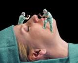 Քթի վիրահատության ընթացքը